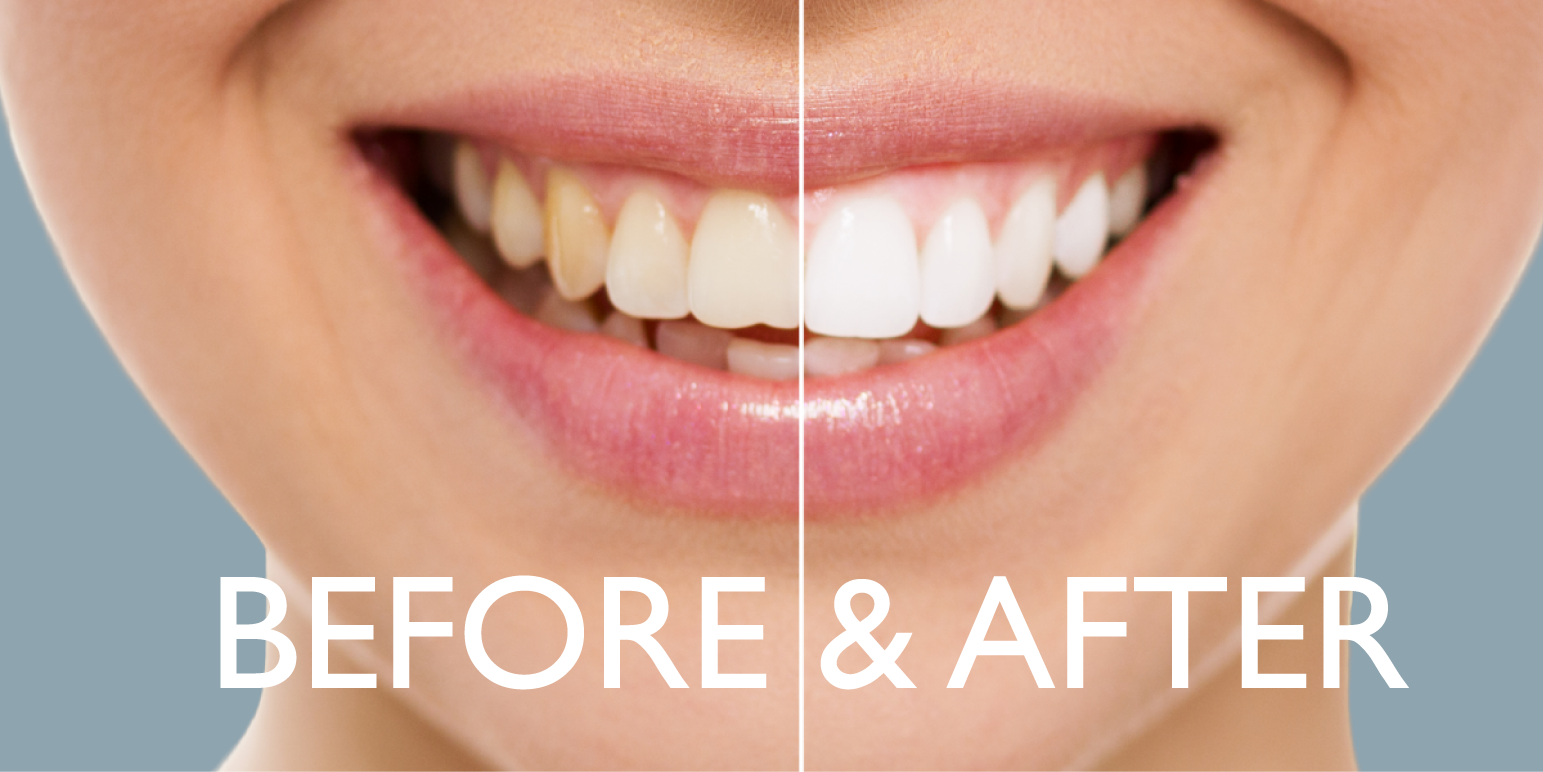 dental transformations NYC