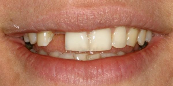 before dental transformation dental implants nyc