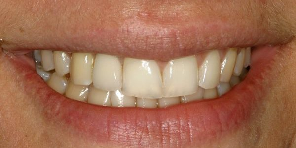 After dental transformation dental implants nyc