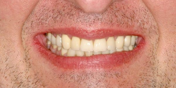 Paul dental transformation specialized dentistry of new york
