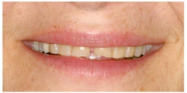 Razita dental transformation specialized dentistry of new york