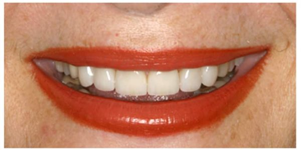 dental transformation NYC specialized dentistry of new york